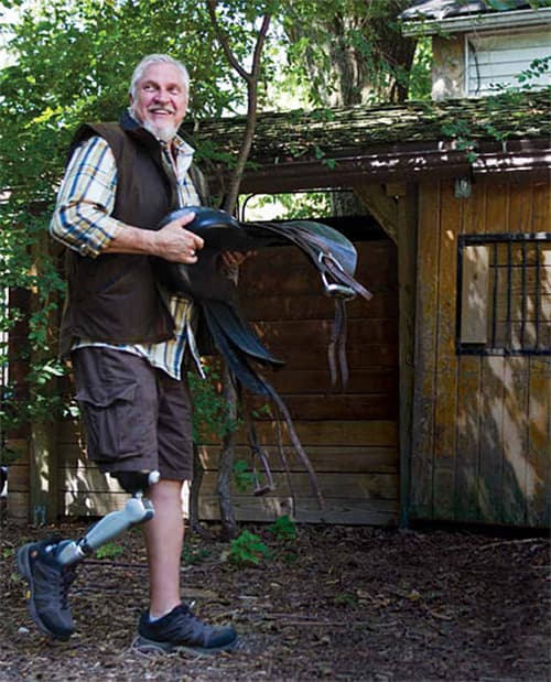Prosthetics in St. Louis | Symbionic Leg